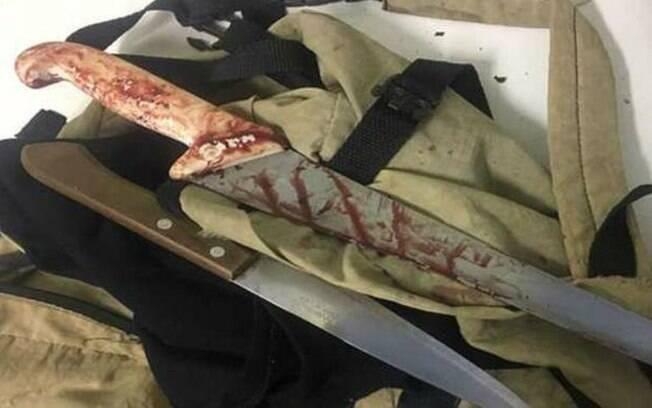 Crime aconteceu na noite de segunda-feira (9). Vítima foi golpeada nas mãos e no braço.