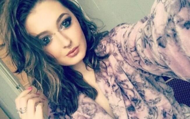 Cabeleireira e maquiadora Charlene Colechin, de 18 anos, divulgou fotos de seu corpo tomado pela infecção