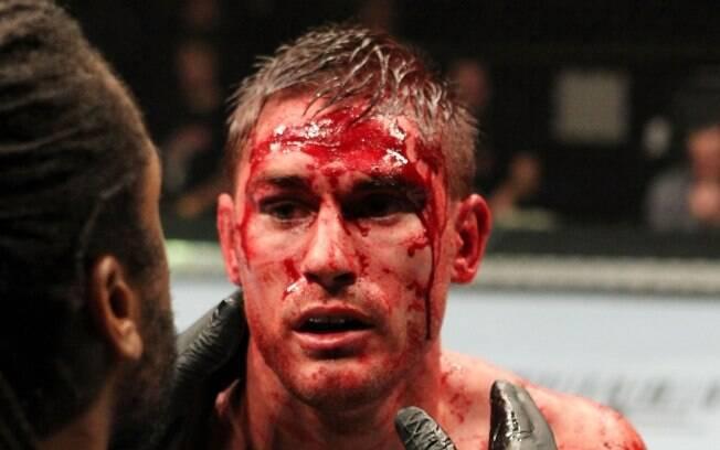 Wayon Lowe - Lutadores do UFC ficaram  desfigurados após batalhas dentro do octógono