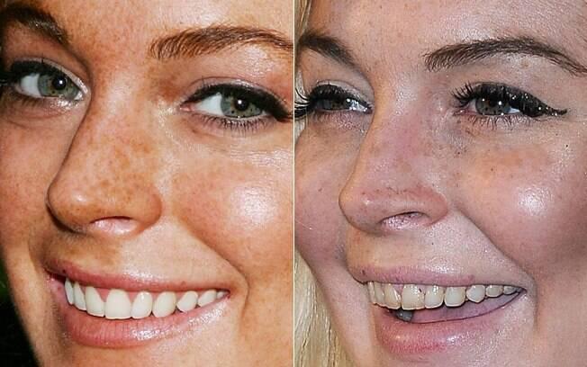 Lindsay Lohan em 2006 e em 2011: crack pode ter debilitado os dentes da atriz, segundo o pai