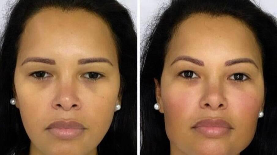 Ariadna mostra resultado de harmonização facial