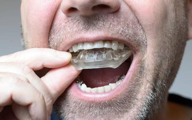 Placas de relaxamento feitas pelo dentista podem proteger os dentes e evitar o desgaste provocado pelo bruxismo