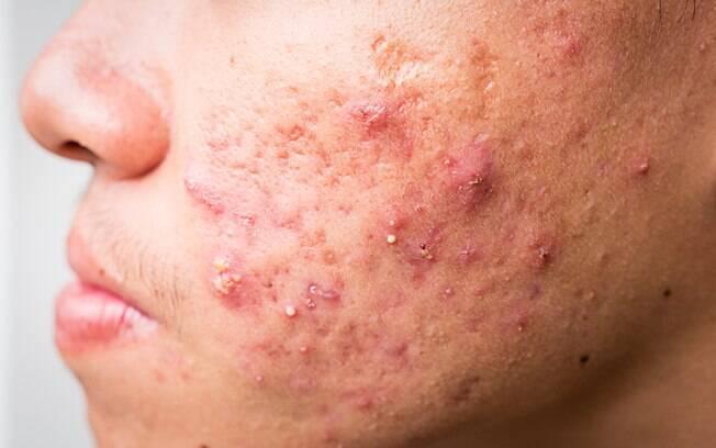Acne severa acontece quando as pústulas se tornam cistos e abscessos, de acordo com a SBD