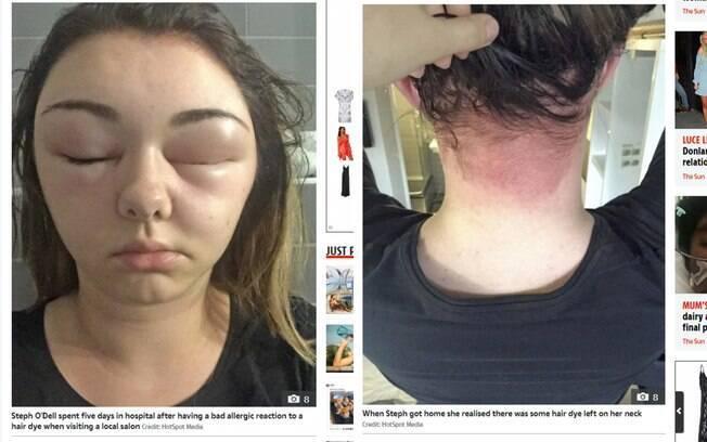 A britânica Steph O'Dell teve uma reação alérgica severa à tintura de cabelo que usou em um salão de beleza