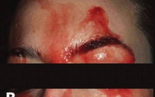 Além de chorar sangue, também é possível suar: condição é extremamente rara, e afeta apenas uma pessoa a cada 10 milhões