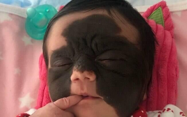 Luna Tavares Fenner nasceu com uma doença rara na pele e a mãe decidiu conscientizar pessoas para diminuir preconceito