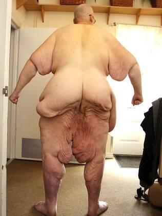 ex mais gordo do mundo apela nudez em luta por cirurgia