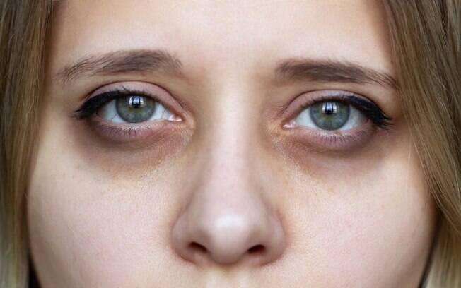 5 dicas para reduzir as olheiras de forma natural!