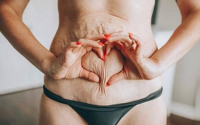 Post de influenciadora canadense sobre as consequências de uma abdominoplastia rendeu mais de 5 mil likes