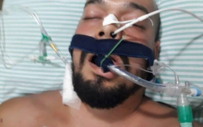 O traficante César Augusto Alta de Araújo, o PQD, morreu após a explosão de um fuzil