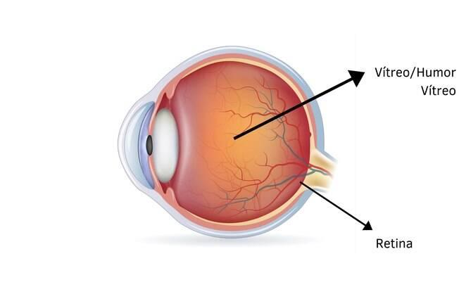 Ilustração mostrando a localização da retina e do vítreo no olho humano