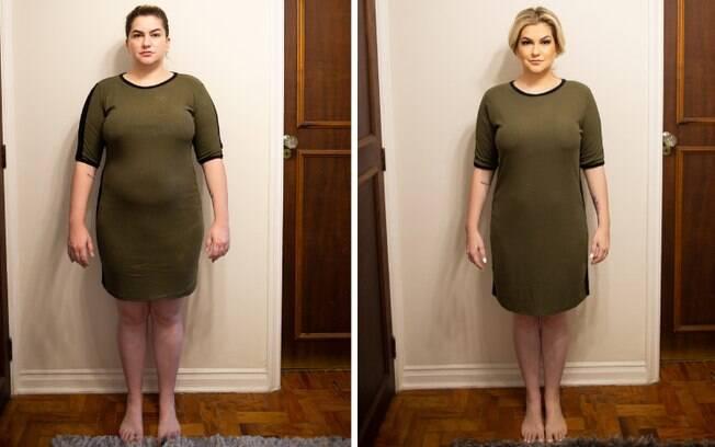 Alice Salazar, maquiadora e influenciadora digital, fez o procedimento e perdeu 17 kg em três meses