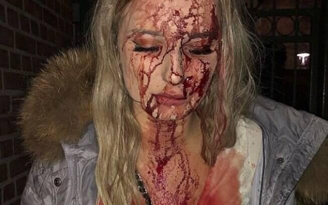 Após agressão, ela foi levada ao hospital, onde levou pontos devido aos diversos cortes em sua cabeça