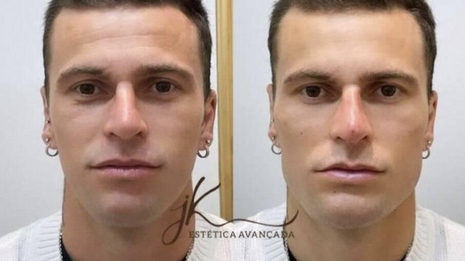 Lucas Lima faz harmonização facial e fica 'irreconhecível'