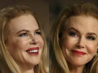Nicole Kidman surge com lábios inchados e quase irreconhecível em tapete vermelho de Cannes