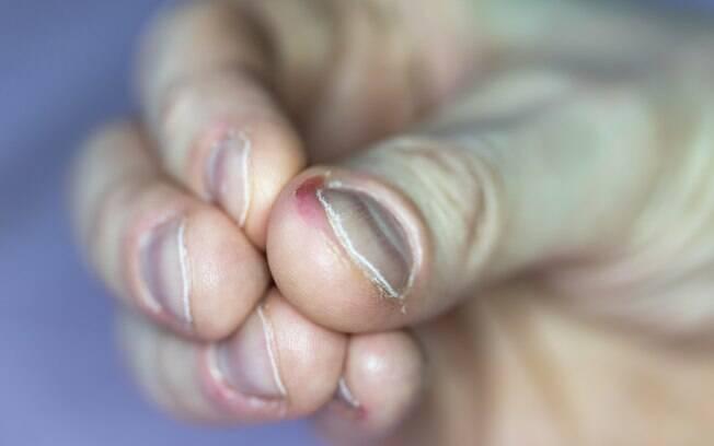 Roer as unhas pode causar infecções graves no corpo