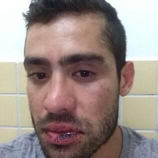 Yuri Fernandes mostra ferimentos por conta da briga com a namorada