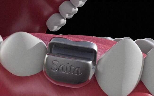 Implante dentário para abrir garrafas