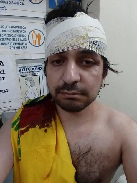 Leandro Mohalem registrou ferimentos após receber atendimento no hospital