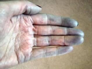 Dedos azulados pela má circulação causada pela Síndrome de Raynaud
