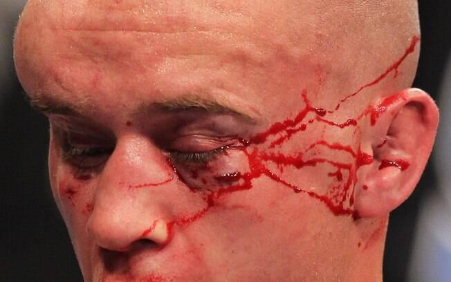 Lutadores do UFC ficaram desfigurados após  batalhas dentro do octógono