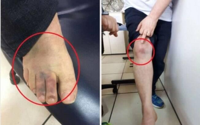 Imagens divulgadas pela equipe de Anthony Garotinho mostram ferimentos do ex-governador