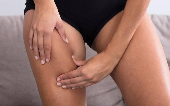 Se você tem coxas grossas e sofre com o atrito entre elas, fique sabendo que existem formas de evitar as assaduras