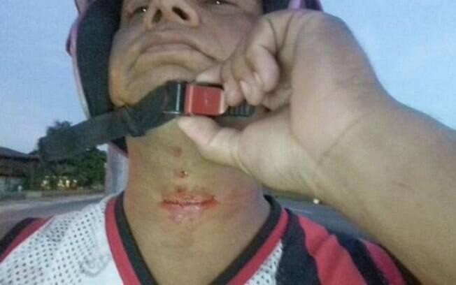 Jair Sena teve o pescoço cortado por linha chilena enquanto pilotava sua moto