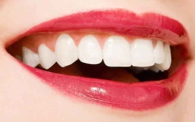 Preenchimento gengival é a solução para quem busca o sorriso perfeito