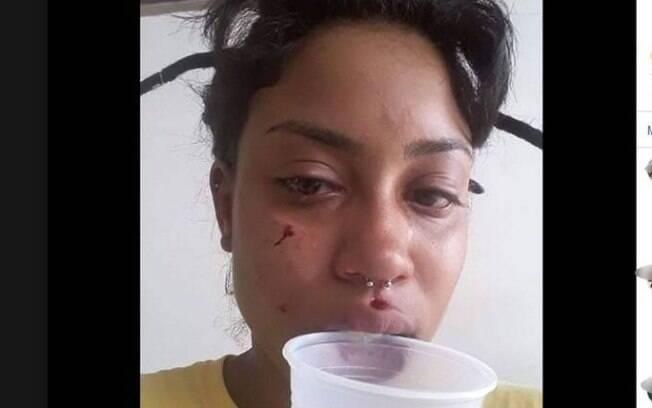 Ana Carolina, a agente de trânsito, mostra o rosto machucado após agressão