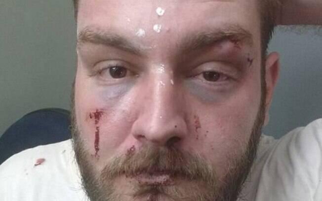 O dirigente PT Geovani Doratiotto contou ter sido agredido por trajar uma camiseta com os dizeres