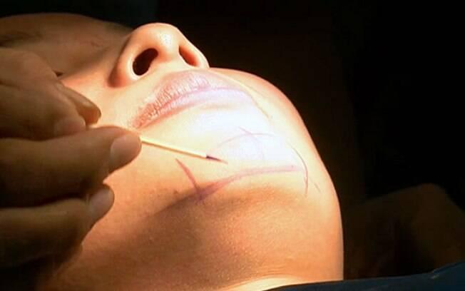 Em 2014, foram realizadas 7 milhões de cirurgias plásticas na China