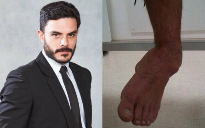 O ator Kiko Pissolato mostruo o resultado do machucado no pé