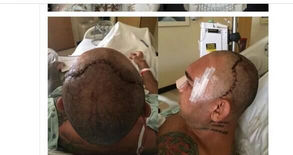 Evangelista Cyborg faz reconstrução do crânio após lesão; imagens são fortes