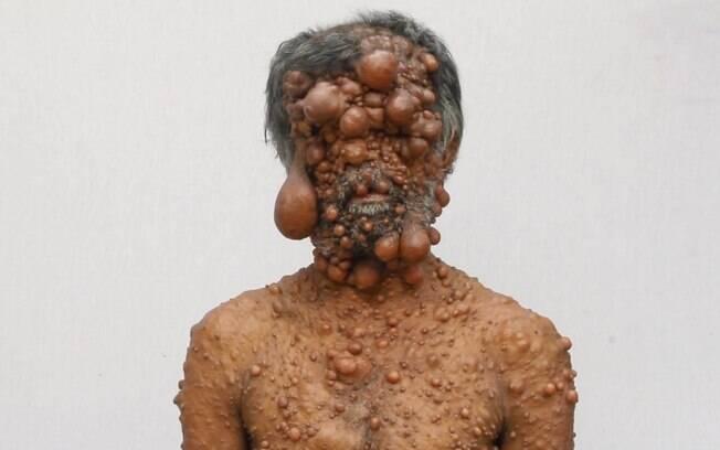 Shadot Hossain, de 47 anos, explica que começou a perceber o surgimento de tumores na pele quando tinha apenas 13
