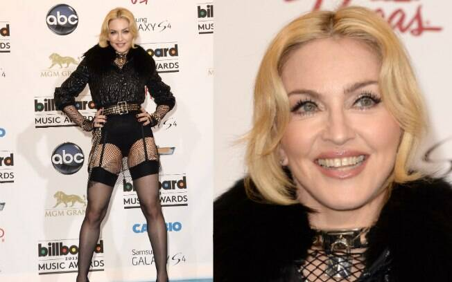 A rainha do pop Madonna sempre teve como marca registrada os dentes levemente separados
