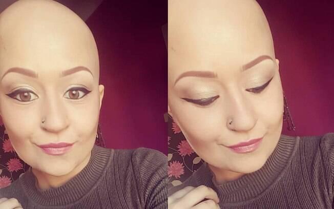Aos 22 anos de idade, a britânica Amy Chinnick descobriu que a queda de cabelo era sintoma de alopecia universalis