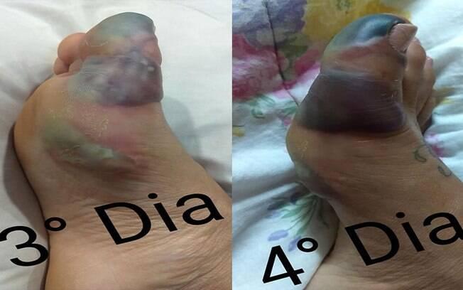 Picada gerou necrose no pé.