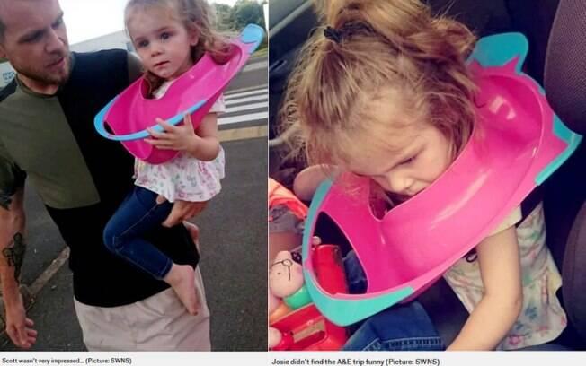 Josie, de dois anos, ficou com um assento sanitário preso na cabeça, mas o pai não conseguiu tirar e a levou até o hospital
