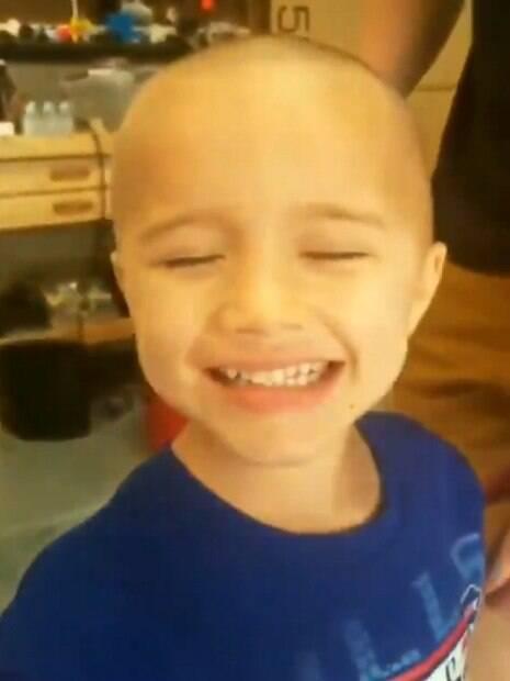 Menino aparece de olhos fechados e sorrindo, com a cabeça completamente sem cabelo