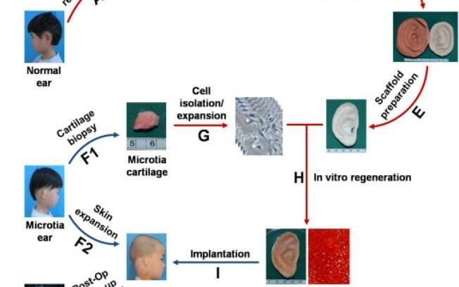 Método criado por cientistas chineses não deve ser usado em casos estéticos por reações possíveis no corpo