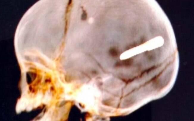 Bebê é atingido por prego na cabeça e é internado em estado grave