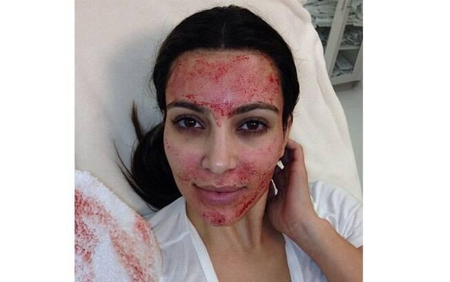Kim Kardashian mostra no Twitter foto em que aparece com o rosto ensanguentado durante tratamento estético