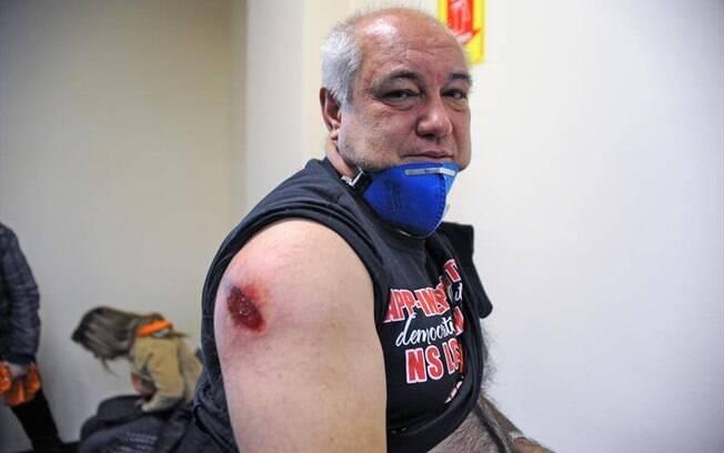 Mais de 100 pessoas ficaram feridas. Foto: SMSC/29.04.15