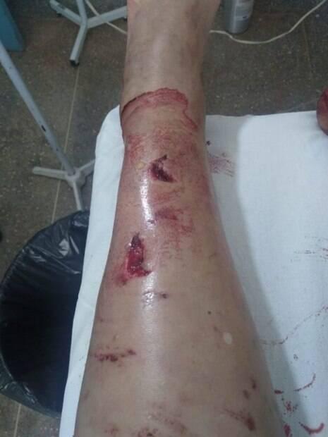 perna ferida por porco-do-mato