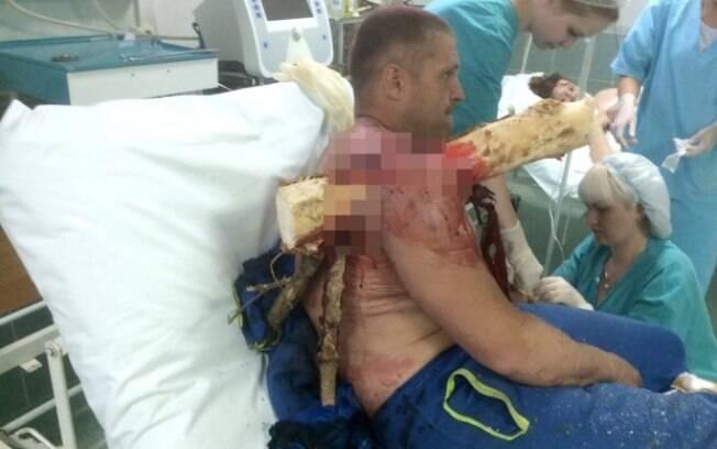 Ivan Krasouski estava voando de asa-delta  quando perdeu o equilibro ao pousar, caindo em cima do tronco de árvore