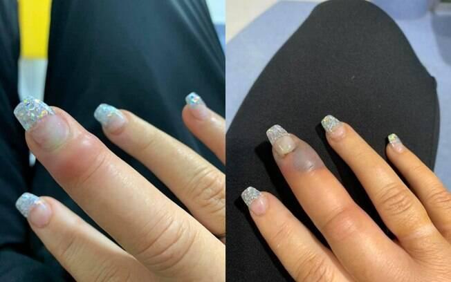 Uma internauta compartilhou as fotos no Facebook para alertar sobre infecções nas unhas após ida ao salão de manicure