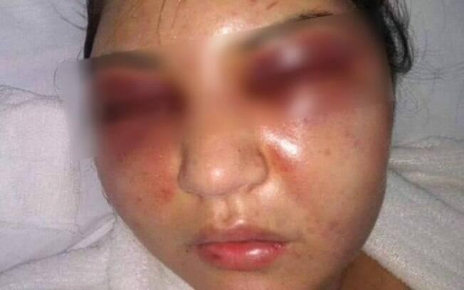 Filho de presidente da Câmara dos Vereadores é acusado de cometer agressão e desfigurar rosto de esposa
