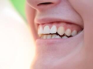 Boa higiene bucal e consultas periódicas ao dentista ajudam a prevenir problemas bucais