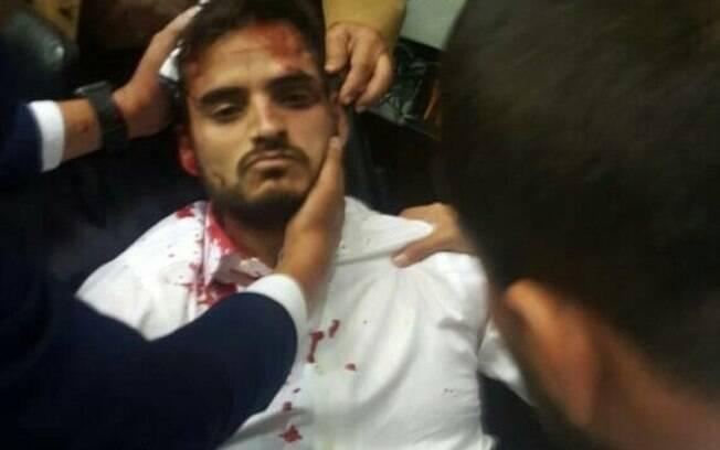Deputados da Venezuela ficaram feridos após confrontos com militantes armados de barras de ferro e madeira